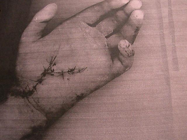 operacja ręki